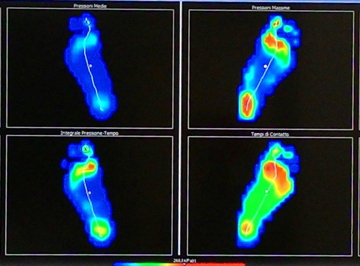 laboratorio del piede